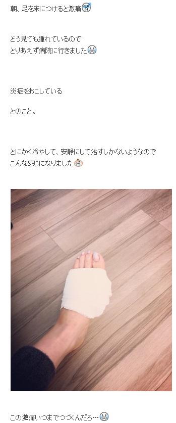 川田裕美アナが激痛