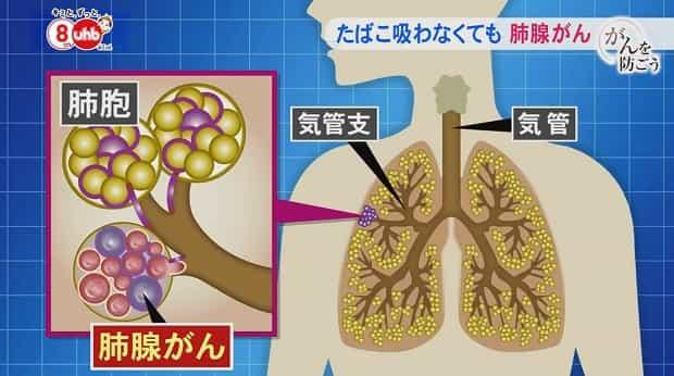松島茂アナの死因は病気の肺腺がん