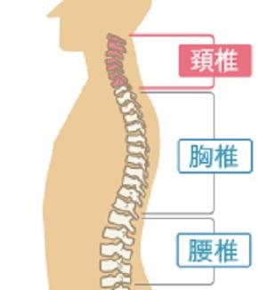 頚椎硬膜外膿瘍
