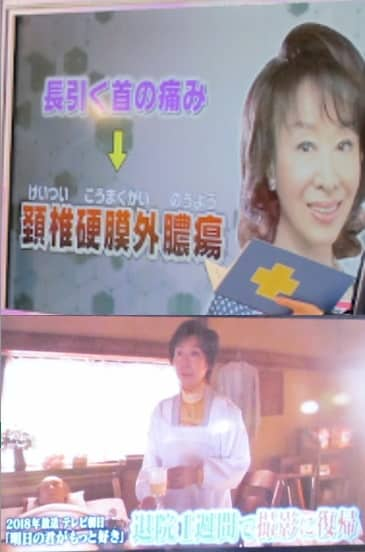 三田佳子の病気