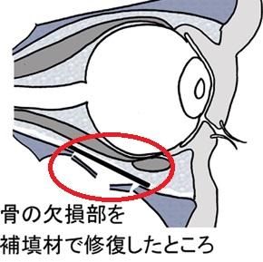 右 眼 眼窩 底 骨折